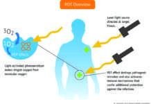 Fotodinamik terapi nedir