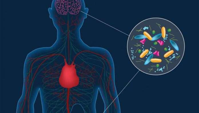 Parkinson hastalığı ile midedeki mikroplar arasında bağlantı keşfedildi.