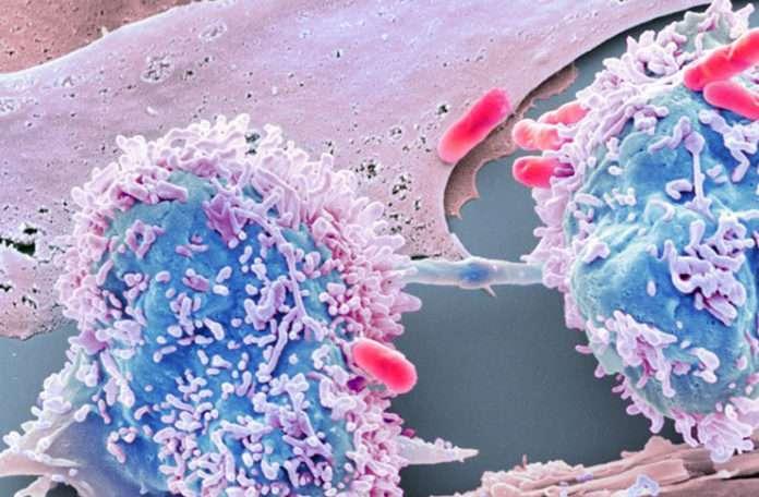 Yapay Zeka bilimsel bir bulmaca olan kanser için kullanılabilir