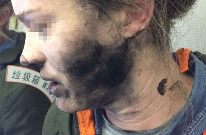 Talihsiz uçak yolcusu kablosuz kulaklıklarının alev almasıyla dehşet içerisinde uyandı