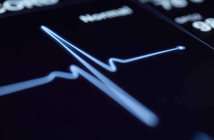bir araştırma ekibi, kalp krizi geçirme ihtimalini başarıyla tahmin edebiliyor