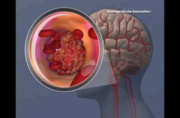ağır bir felç tipi olan 'intracerebral hemorrhage (ICH)'