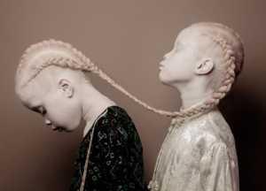 Albino hastalığı neden kaynaklanır?