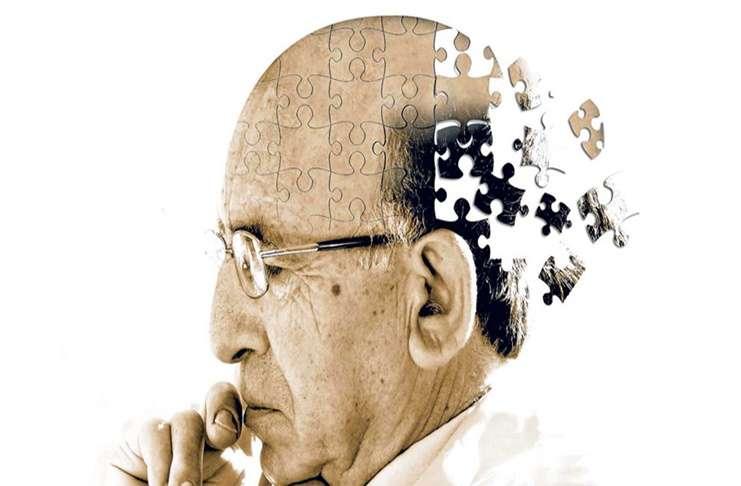 Beyin yaşlanmasını yavaşlatmak üç adımda sizin elinizde!