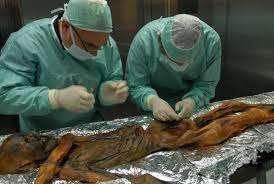 Buz Adam Ötzi'yi kim öldürdü?
