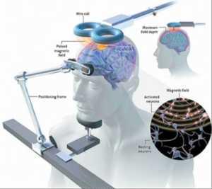 """Doktorlar, depresyon yaşayan insanlar için beynin """"yeniden"""" iletim manyetik uyarı sistemini kullanıyor"""