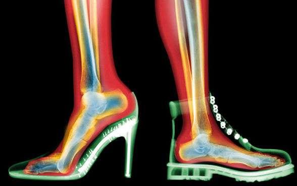Topuklu ayakkabılar sağlığınıza zarar veriyor