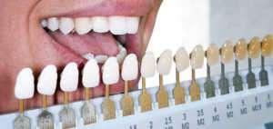 Uzmanlar uyarıyor! Diş beyazlatan market ürünlerini kullanmayın!